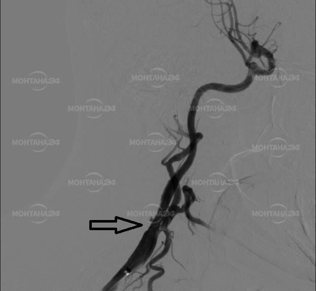 """Поставиха успешно стент на сънна артерия за по-малко от 30 минути в МБАЛ """"Сити клиник – Свети Георги"""" Монтана"""