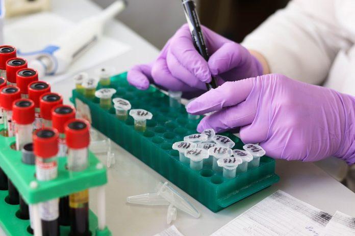 6 положителни случая на Хепатит В и С само за ден в Монтана