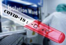Резултатите от 30 нови проби за коронавирус в Монтанско се очакват днес
